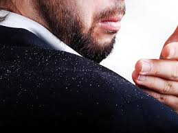 Top 10 Natural ways to get rid off dandruff-2